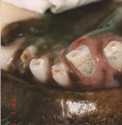 abgestorbener zahn symptome
